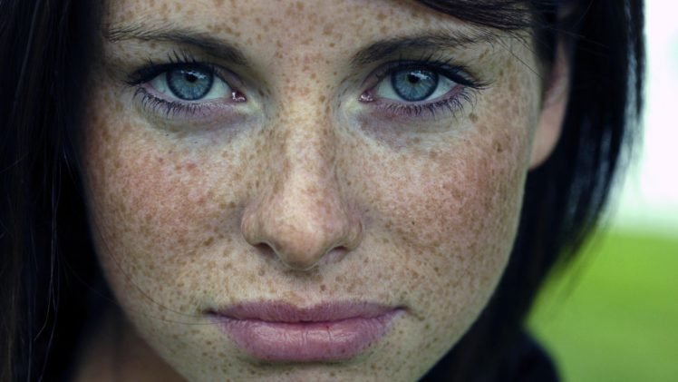 Image result for brunette covered in freckles